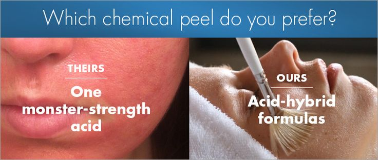 Which chemical peel do you prefer? Learn the difference on the SkinReading blog!