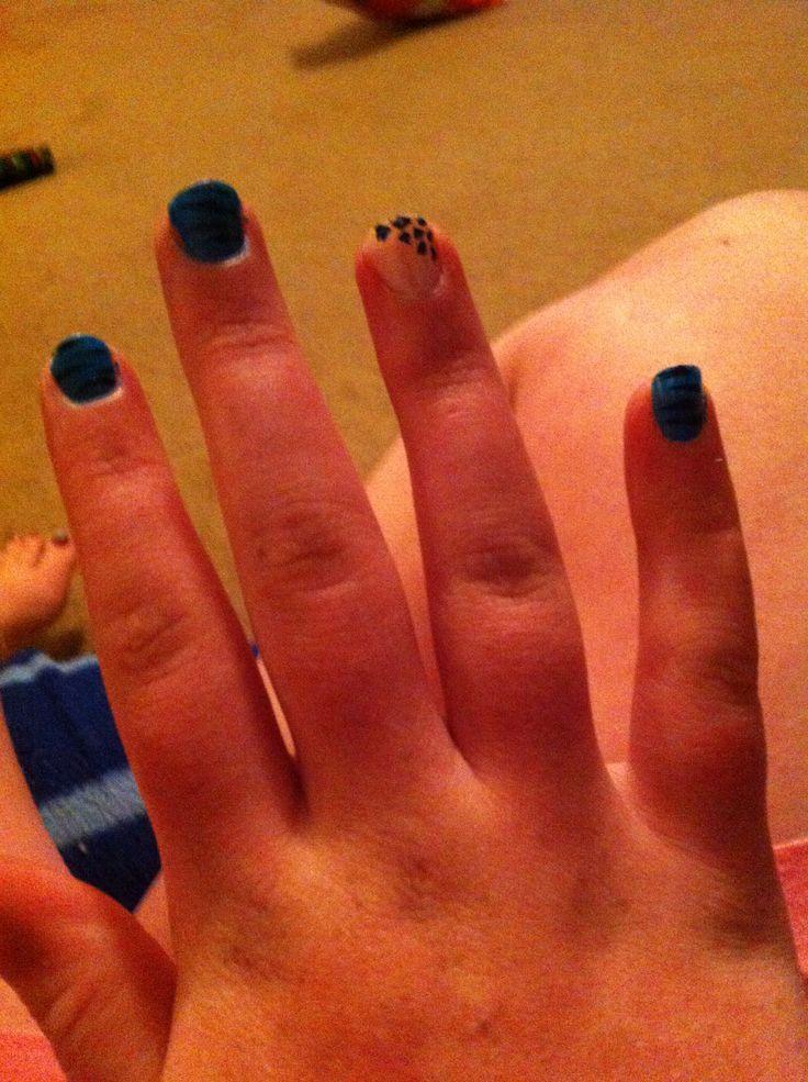 Zebra on all fingers besides the ring finger and the ring finger cheetah print
