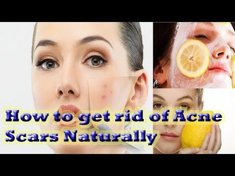 1762 best best relief from acne images on pinterest natural how to get rid of acne scars naturally acne cures and remedies ccuart Choice Image