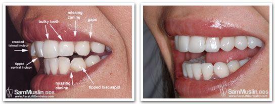Straight Teeth In Just 4 Days With No Prep Porcelain Veneers