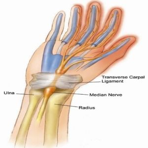 5 Powerful Herbal Remedies For Carpal Tunnel