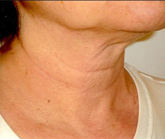 Neck Wrinkles - How to Get rid of neck lines
