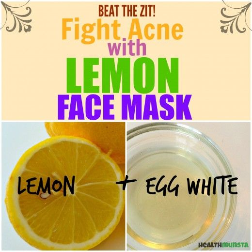 Lemon has the right qualities to help you beat acne. Try this simple, no-nonsense lemon face mask to banish the zits.