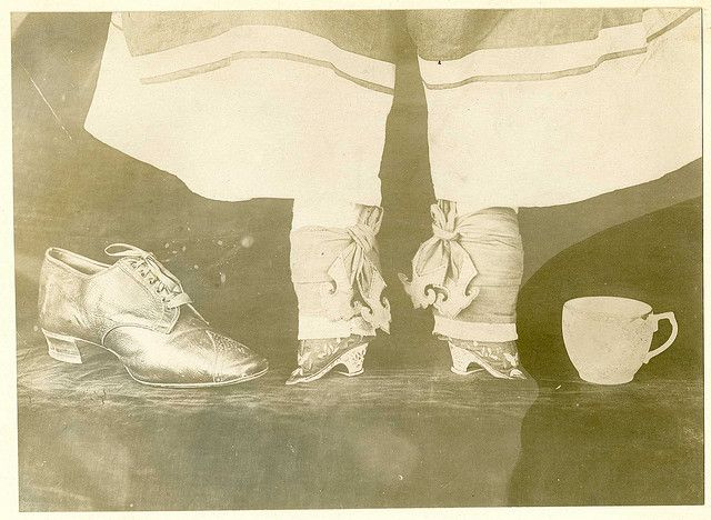 Orthopedics; feet of Chinese woman, bound, compared with tea cup and American woman's shoe. World War 1 era. 1000 years of institutionalized gender-based intentional crippling. Truly horrifying.