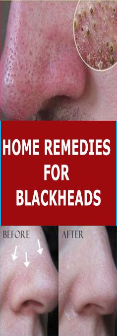 HOME REMEDIES FOR BLACKHEADS – Health life