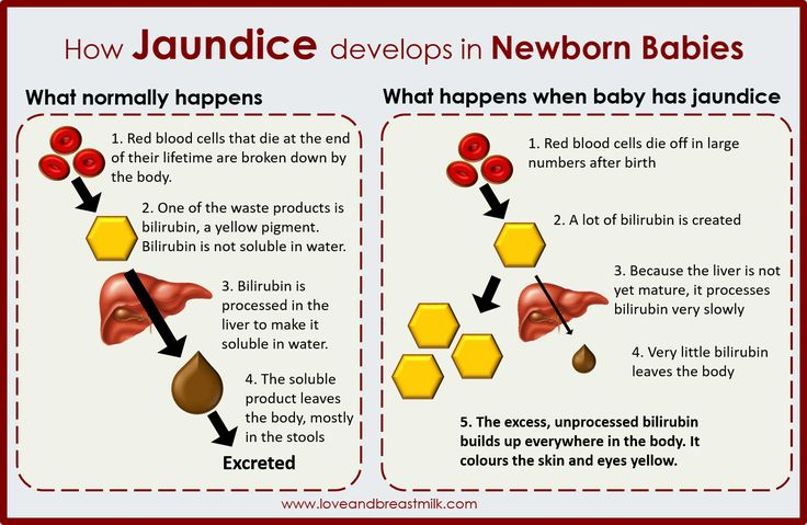 How jaundice develops in newborn babies. It all makes so much sense when you look at it like this!