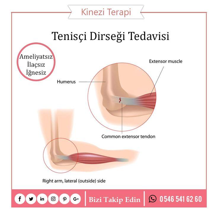 Tenisçi Dirseği Hastalığı  Ameliyatsız, İğnesiz, İlaçsız Tenisçi Dirseği HastalığıTedavi için Kinezi Terapi ile iletişime geçin.