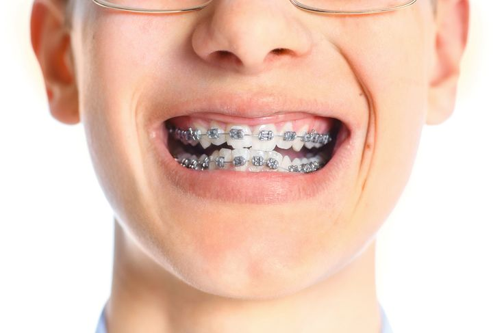 """To begin, I got totally screwed over in the dental genes department. I was born with a pretty severe overbite and a mouth that was too small. (Seriously, I didn't even know mouths could be """"too sma..."""