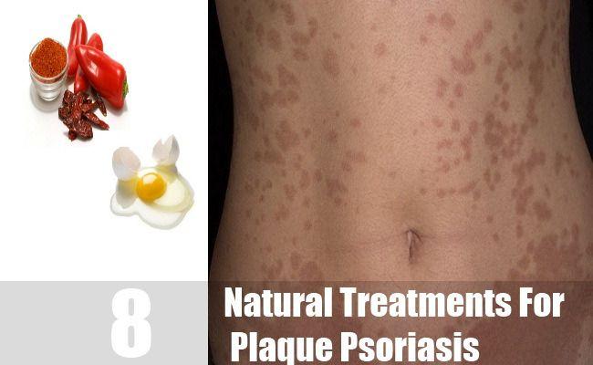 what causes plaque psoriasis