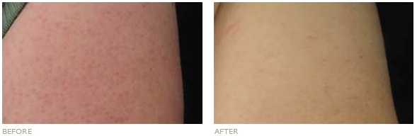 Keratosis Pilaris Before And After Coconut Oil