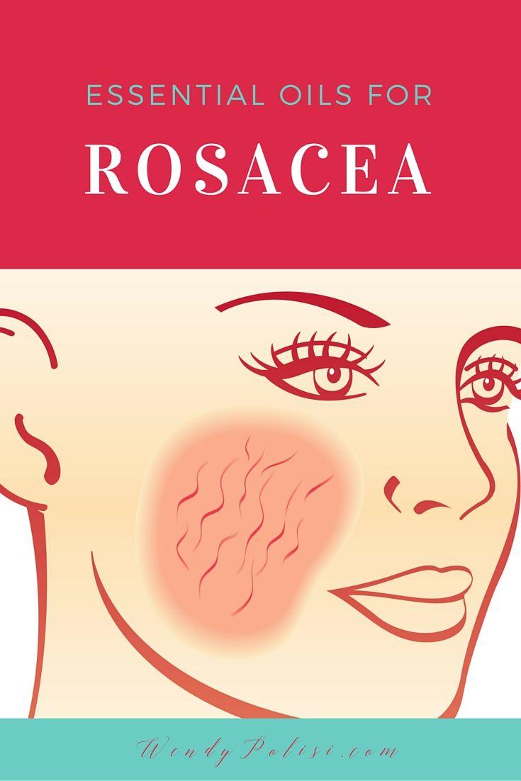 Best 25+ Rosacea makeup ideas on Pinterest | Rosacea ...