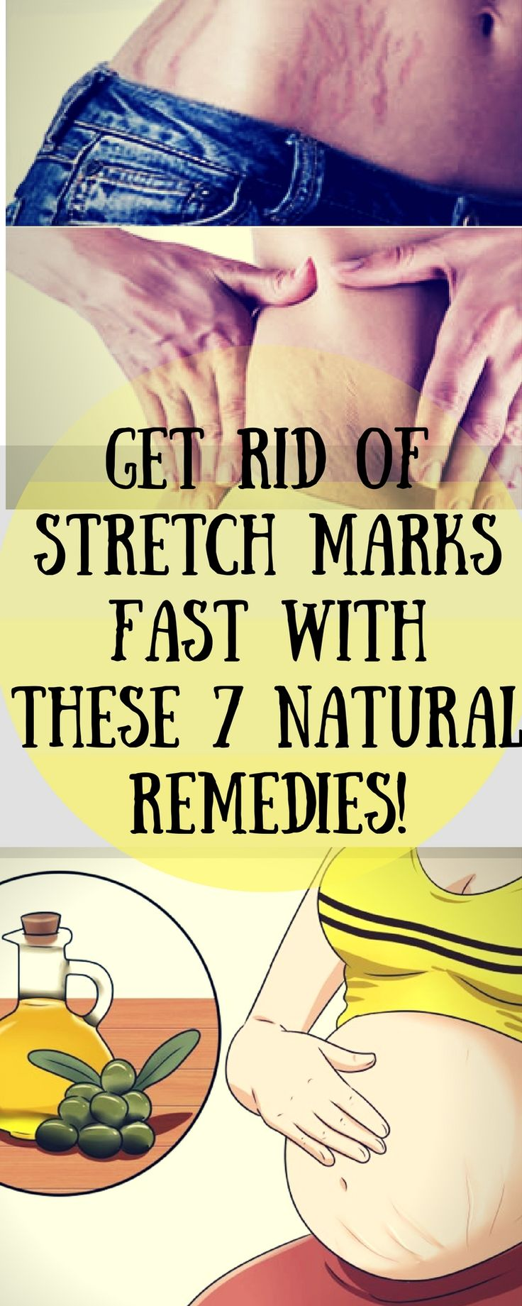 Get rid of stretch marks fast with these 7 natural