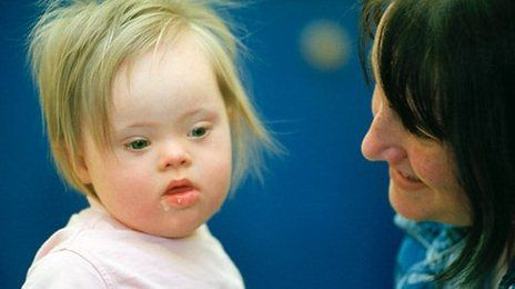 US scientists say they have moved a step closer to being able to treat disorders caused by an extra chromosome.