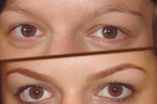 биотатуаж фото до и после
