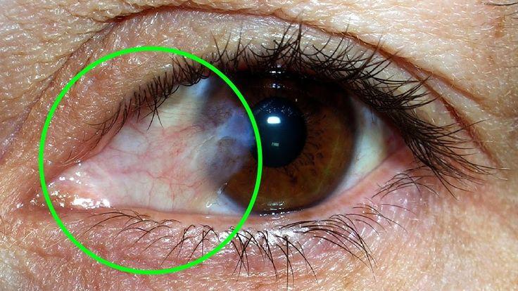 Cuando hablamos de las carnosidades en los ojos según estudios estos son conocidas también como pterigón, es un tejido que crece sobre la conjuntiva, la cual es una capa bastante transparente que cubre al globo ocular. LAS CAUSAS QUE GENERAN ESTA CARNOSIDAD SON PRINCIPALMENTE: La radiación ultra