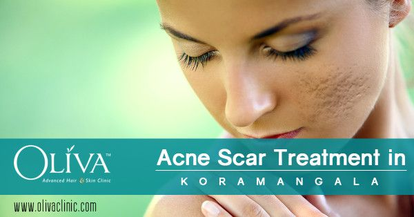 Are you suffering with acne scars on your face? Fade away the acne scars with treatment at Oliva Clinics koramangala, Bangalore