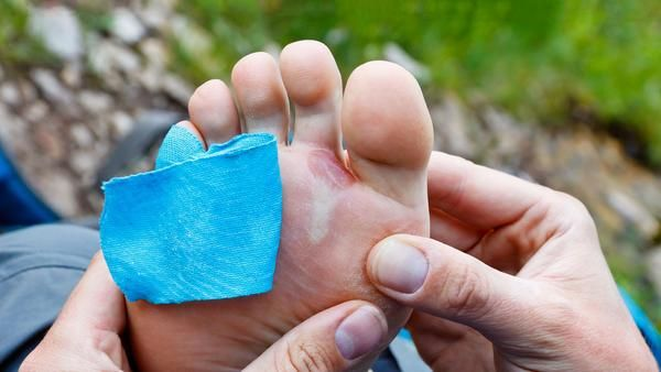 Don't Let Blisters Ruin Your Next Hike Blisters can quickly ruin a perfect day in the backcountry. Blisters can happen to even the most experienced hikers and m
