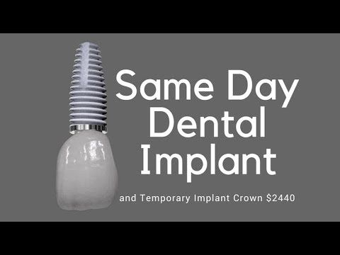 Same Day Dental Implant $2440 Implant + Temporary Crown Perth Dr Jose Nunes Dental Implant Placements in 79 Moolyeen road, Brentwood WA 6153,  This does not include a sinus lift which costs $300 to $400 or a Bone Graft and Membrane which cost $200 Extra as a smile.com.au member. It costs less than $97 per year to join smile but gives you incredible access to pricing that is affordable  Call us 0434998258 or 0893154514 and Speak to our Implant Negotiator Tess Nunes for any questions and…