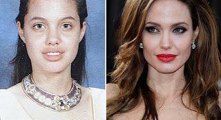 Ilumina a Tua Mente: Famosos antes e depois da fama
