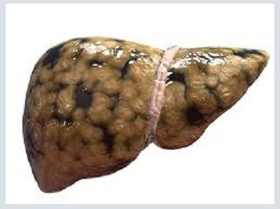 Kurkuma keert conditie van vette lever binnen  8 weken om