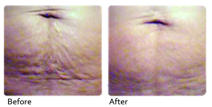 Get Rid of Stretch Marks!! @DNAhealthcorp  http://www.dnahealthcorp.com/pages/stretch-mark-removal