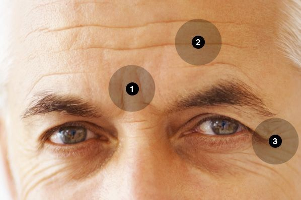 how to get rid of deep set forehead wrinkles