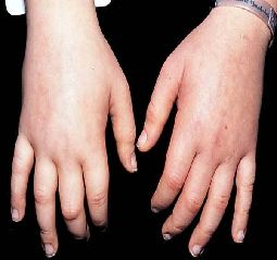 Kidney imbalance can be shown as symptoms such as........swelling, particularly of the hands and feet; puffiness around the eyes; azotemia (Increased levels of urea in blood);