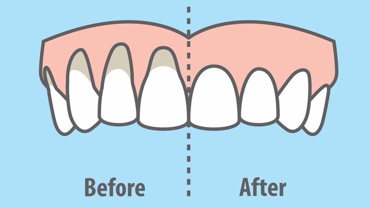 Gum recession can occur due to genetics, poor dental hygiene, hormone fluctuations, or gum disease. Here are 10 easy ways to heal receding gums naturally...