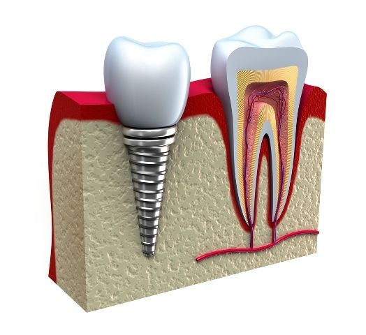 Dental implants are used to replace missing tooth from a patients mouth to know more visit here http://www.dentalclinicdelhi.com/dental-implants-india