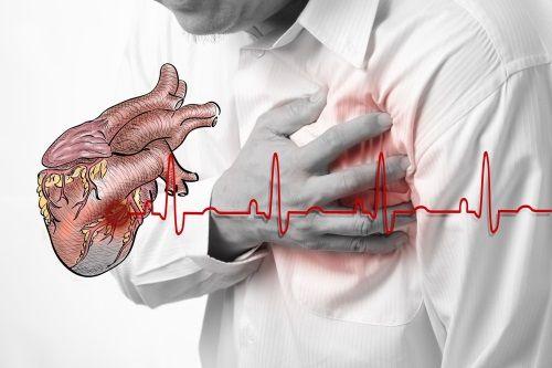 Study Identifies Warning Symptoms for Sudden Cardiac Arrest