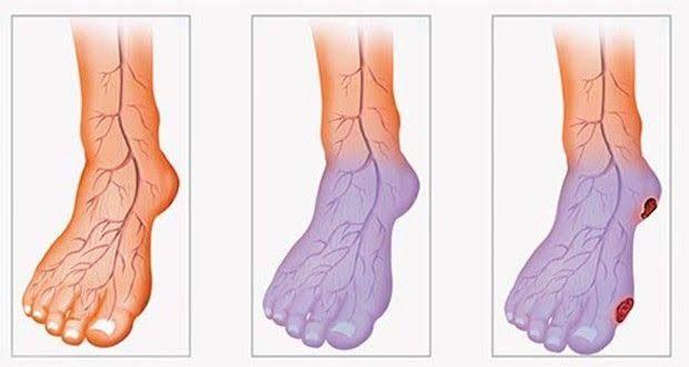 Si vous souhaitez améliorer votre circulation sanguine et prévenir l'hypertension, pensez à pratiquer ces exercices.