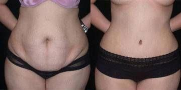 Tummy Tuck Before and After. Countdown until Dr. Garber works his magic on me –
