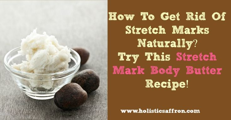 how to get rid of stretch marks naturally homemade products pinterest stretch marks. Black Bedroom Furniture Sets. Home Design Ideas