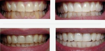 tooth whitening before and after pictures