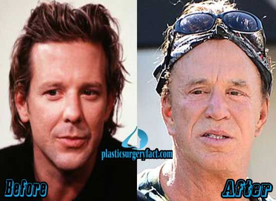 Mickey Rourke Plastic Surgery Gone Wrong | http://plasticsurgeryfact.com/mickey-rourke-plastic-surgery-gone-wrong/