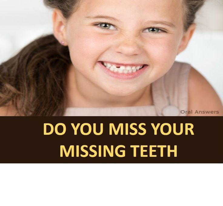 Do You Miss Your Missing Teeth
