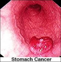 Patients of stomach cancer remain unaware of its presence for long unless the stomach wall and the surrounding structures are involved or there is widespread metastasis. Late detection of the disease therefore explains the reason for poor prognosis.