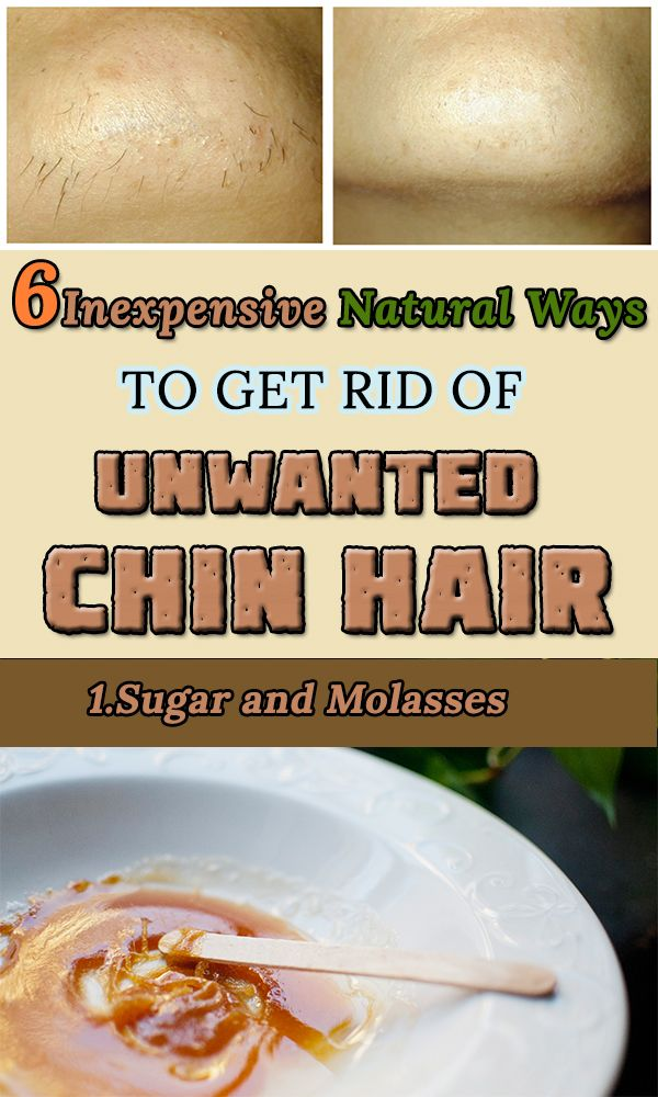 5 Inexpensive Natural Ways to Get Rid of Unwanted Chin Hair
