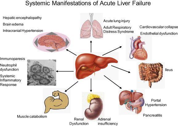 Report: Acetaminophen overdose survivors suffer poorer health than other liver failure patients: http://bionews-tx.com/news/2013/07/10/report-acetaminophen-overdose-survivors-suffer-poorer-health-than-other-liver-failure-patients/