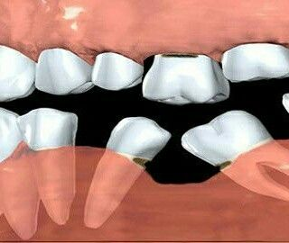 This can happends when you don't fill up a gap in a timely manner....Ask your #dentist about your options!  #implant #bridge #dental #oralhealth#teeth#smile#dentist#clinic