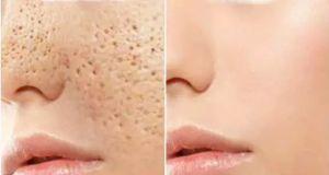 Vous avez besoin de 3 jours seulement pour fermer tous les pores ouverts sur le visage grâce à ces 4 solutions naturelles si efficaces.