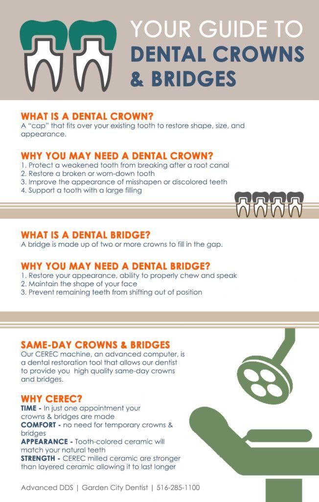 17 Best ideas about Dental Crown Procedure on Pinterest