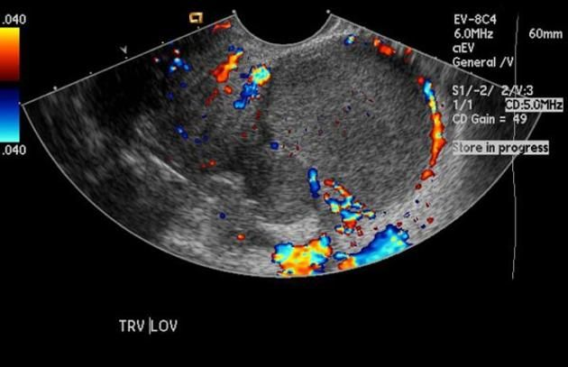 WK 3 ENDOMETRIOMA Endometriosis | Radiology Reference Article | Radiopaedia.org