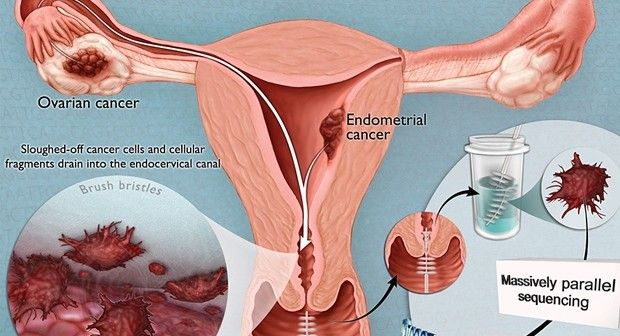 Even though some of the symptoms of this cancer become more pronounced as it advances, there are a few symptoms that may point to one suffering from endometrial cancer. Discharge, unusual bleeding of the vagina and spotting Close to 90% of women experience a change in their periods or unusual bleeding. This usually happens between periods or after menopause and in some instances, a change in period cycles when they are suffering from this type of cancer. Even though this might happen with…