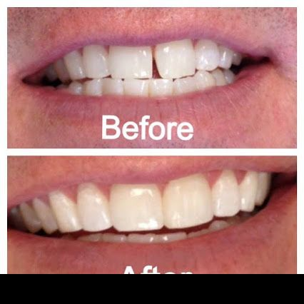 Bonding Treatment. A dental bonding treatment helps those who have cracked; chipped and broken teeth. bonding treatment is a tooth-colored resin that is applied to the tooth in order to cover up small cosmetic flaws. Bonding can fix small gaps or chips in http://reviewscircle.com/health-fitness/dental-health/natural-teeth-whitening/