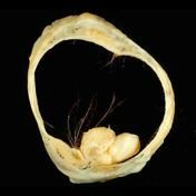 Mature cystic teratoma of the ovary (dermoid similarities)