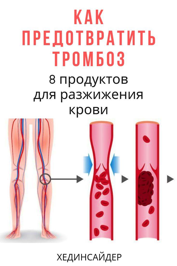 отряд профилактика образования тромбов картинки одна причина