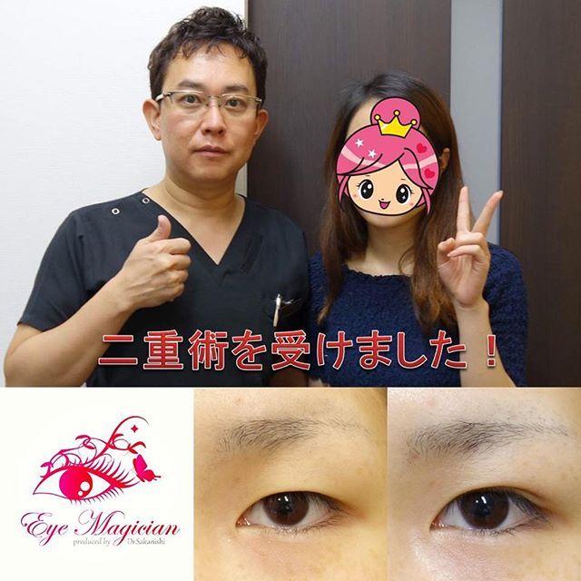 2016/11/02 08:15:02 eye_magician 症例写真:富山県在住、20歳、学生 ✨グランドライン法®(特殊埋没6点法)✨ 2年連続 日本美容外科学会で発表し大人気🎉 アンケート調査で98%の満足度(2016年発表) 腫れない・バレない・戻らない 究極の埋没法二重術を目指して👍 http://ameblo.jp/saka24x/entry-11594319477.html グランドライン法®は1本の糸を特殊な方法で皮膚側に6点で固定し、糸玉を結膜側に埋め込みます。 そのため、術後の腫れが少なく、目を閉じても全く分からない、究極に長持ちする二重ラインになります👀 人気の秘密はこれですね😆 スッピンでも綺麗な二重、手に入れませんか💕 0120-832-900 #埋没法#埋没#二重になった#二重になりたい#二重術#二重まぶた#アイプチ#アイテープ#メザイク#グランドライン法#坂西#湘南美容外科#兵庫#神戸#三宮#東京#品川#腫れない#美容整形#美容外科#美容#整形#整形メイク#整形したい#整形前#整形疑惑…