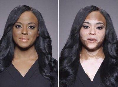 Vitiligo Penyakit Bercak Putih Pada Kulit