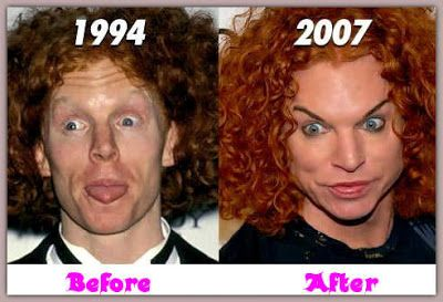 Carrot Top is a renowned comic throughout the planet. His actual title is Scott Thompson. He's well-liked for his reddish hair along with his odd look. Today, individuals are discussing about Carrot Best cosmetic surgery